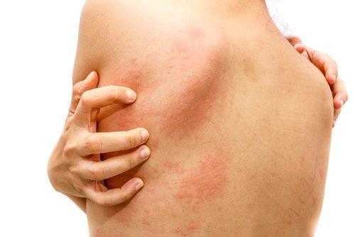 Urticaria espontánea crónica es sub diagnosticada