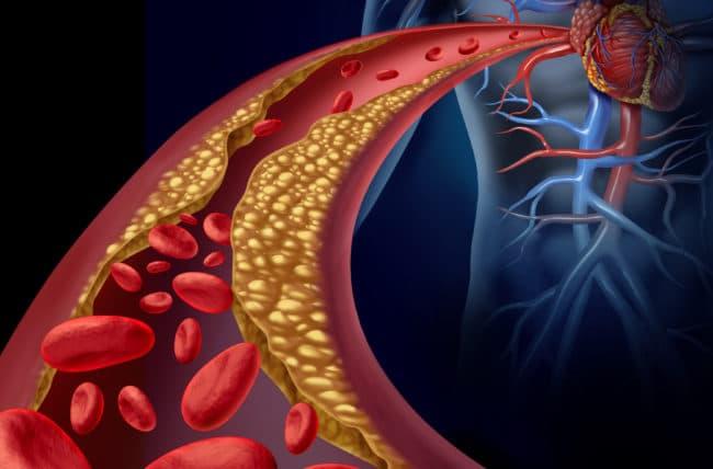 La insuficiencia cardíaca avanzada: con pronóstico más severo que la mayoría de los cánceres en la actualidad